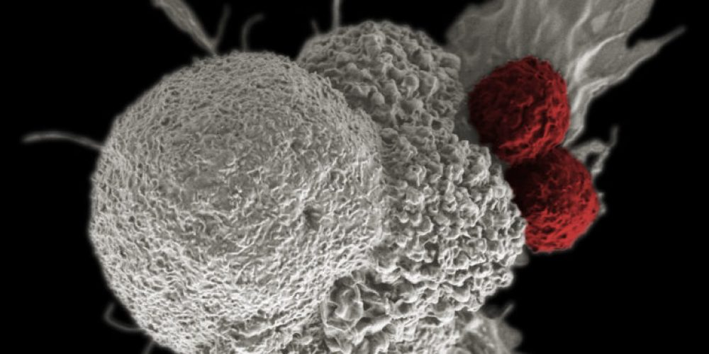 Another Advocacy Win for Patients: Medicare Finalizes Coverage for Some CAR T-Cell Therapies