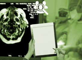 Top 10 Vital Questions to Ask Your Doctor Immediately When Diagnosed with a Brain Tumor